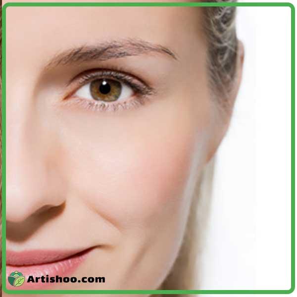 چروک دور چشم و راه های درمان آن با استفاده از روش های مختلف